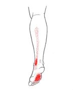 smärta under foten