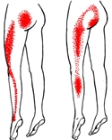 smärta rygg höft