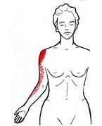 ont i vänster arm muskel