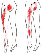 Bildresultat för triggerpunkter i gluteus musklerna