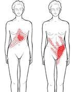 ont i ryggen magen ljumsken
