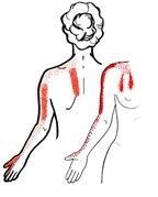 ont i vänster skulderblad och arm
