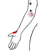 smärta i tummen