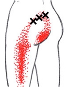 muskelvärk lårets baksida