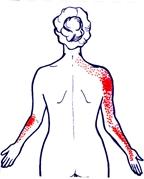 muskelvärk i båda armarna