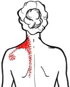 sträckning axel nacke