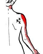 ont i axeln framsidan