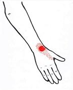 smärta handled ovansida