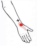 ont i tummen handleden